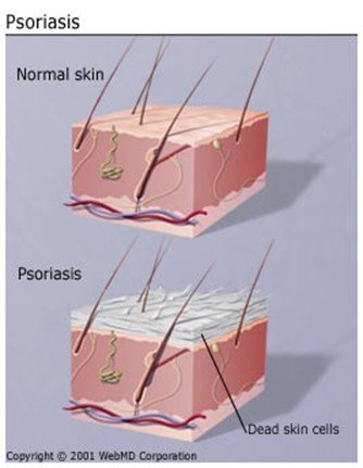 Psoriasis - image of normal skin against skin with psoriasis - motherhooddiaries