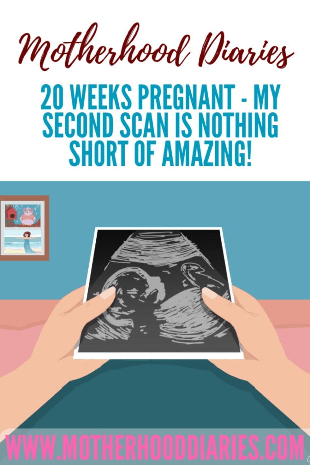 20 weeks pregnant - My second scan is nothing short of amazing!