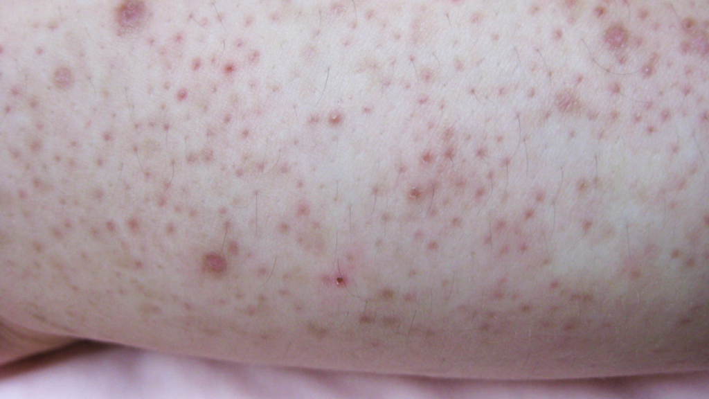 Keratosis pilaris red bumpy skin
